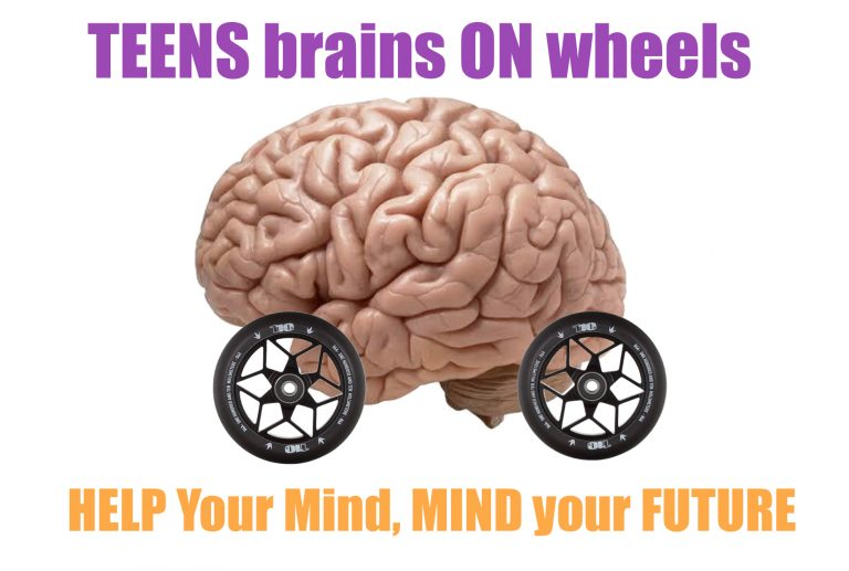 Brain on wheels
